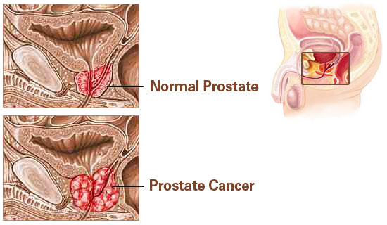 Prostate Cancer Explained